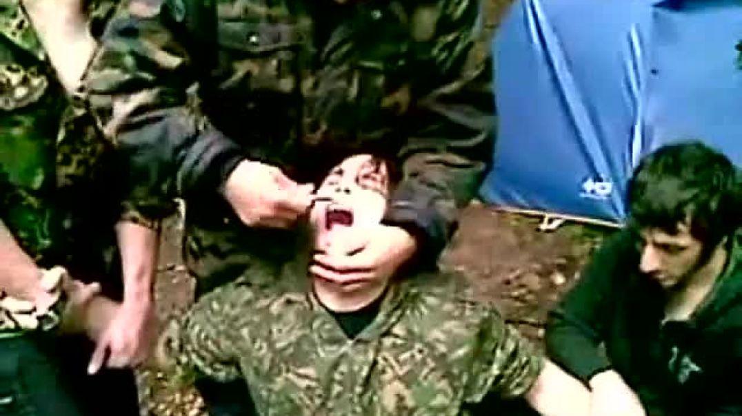 Удаление зуба. Маленький эпизод из жизни муджахидов.